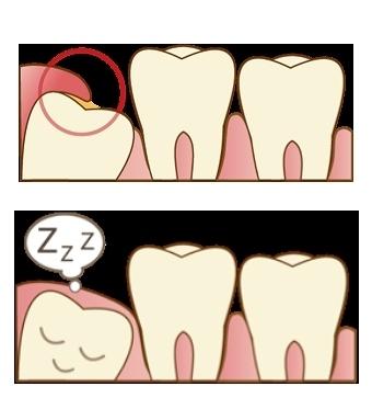 wisdom_tooth_01.jpg